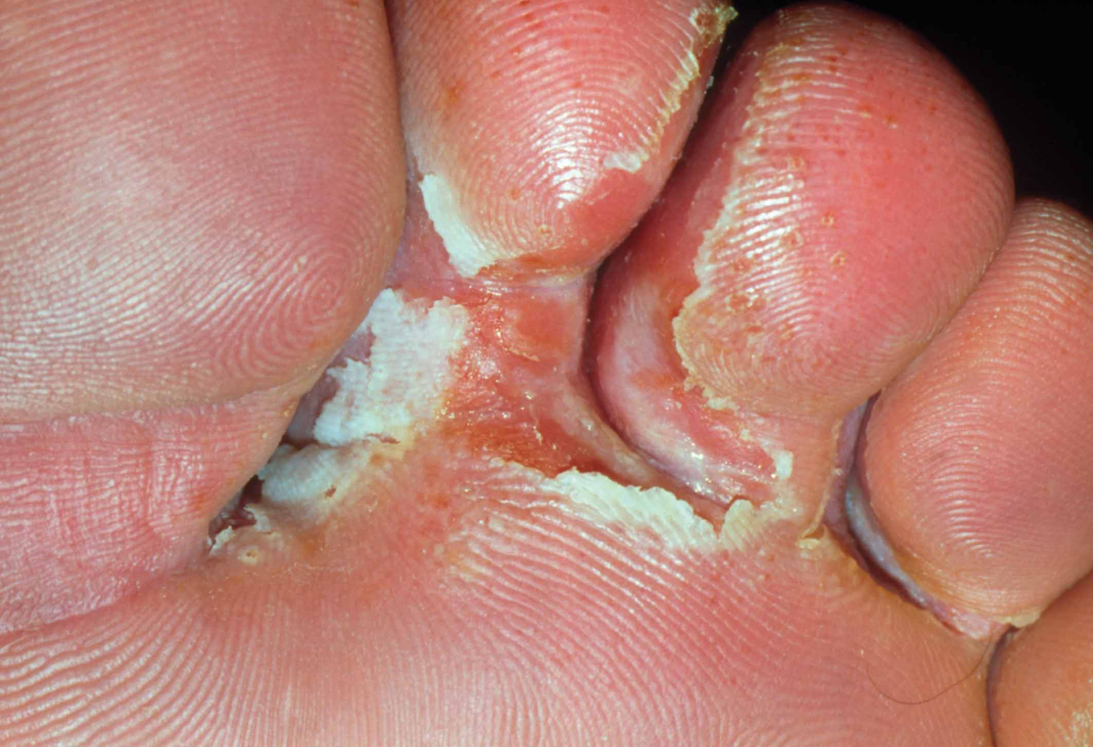 Tinea pedis | definition of tinea pedis by Medical dictionary