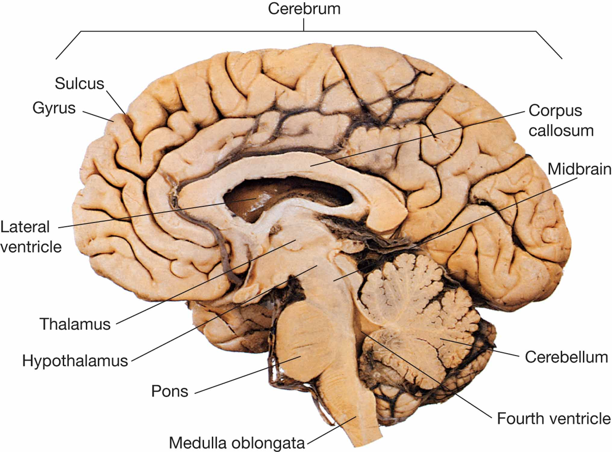 Midline cut section of the brain. - Biology Forums Gallery