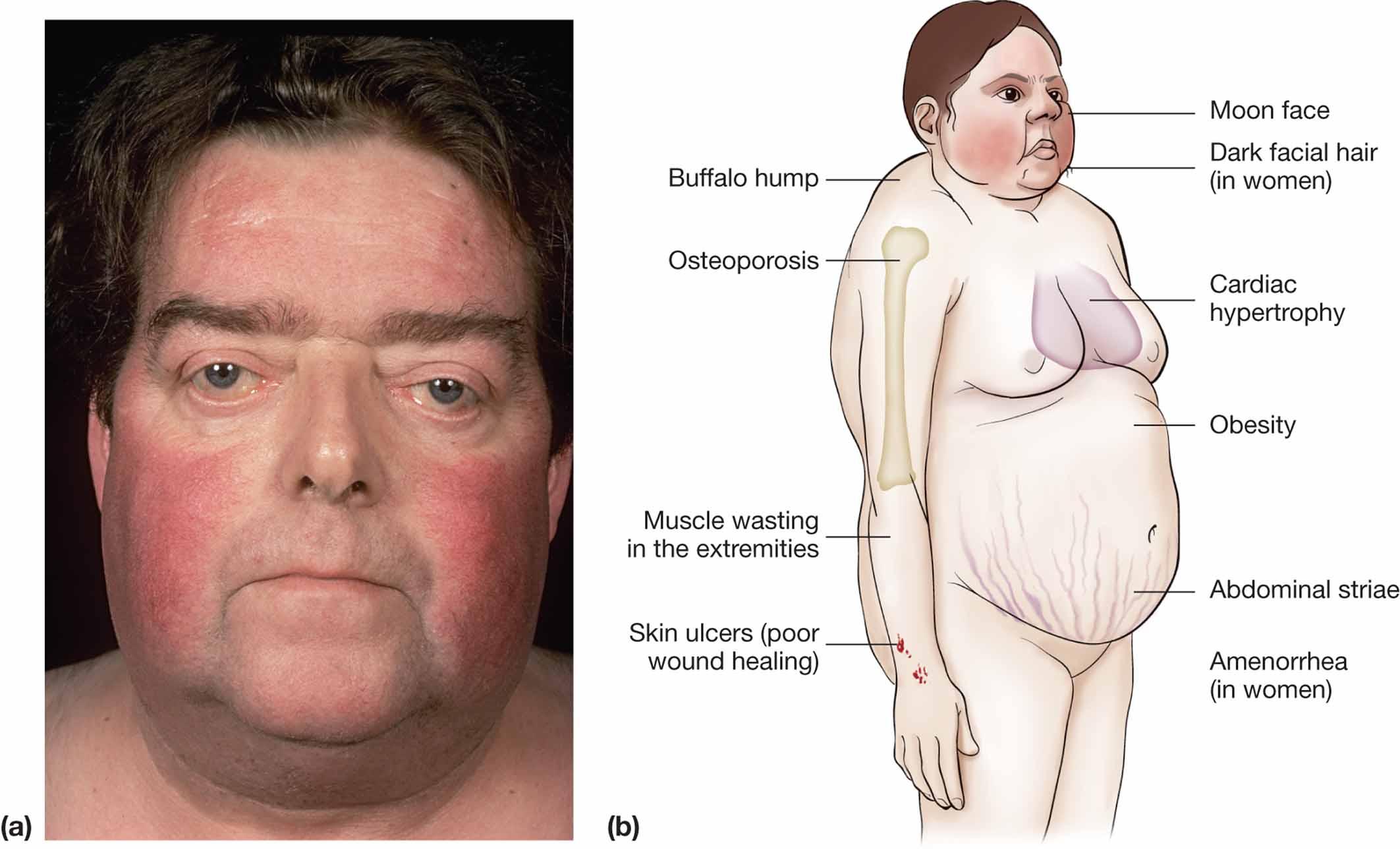steroid muscle weakness