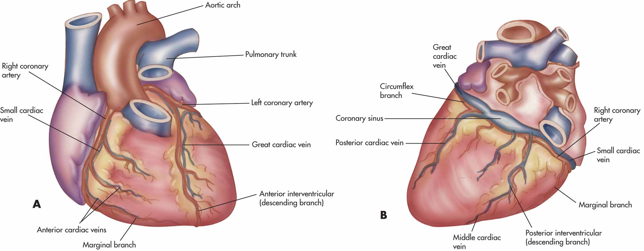 coronary heart About coronary artery disease: coronary artery disease is a narrowing or blockage of the small blood vessels that supply blood and oxygen to the heart it is caused by atherosclerosis,a buildup of plaque in the arteries to your heart.