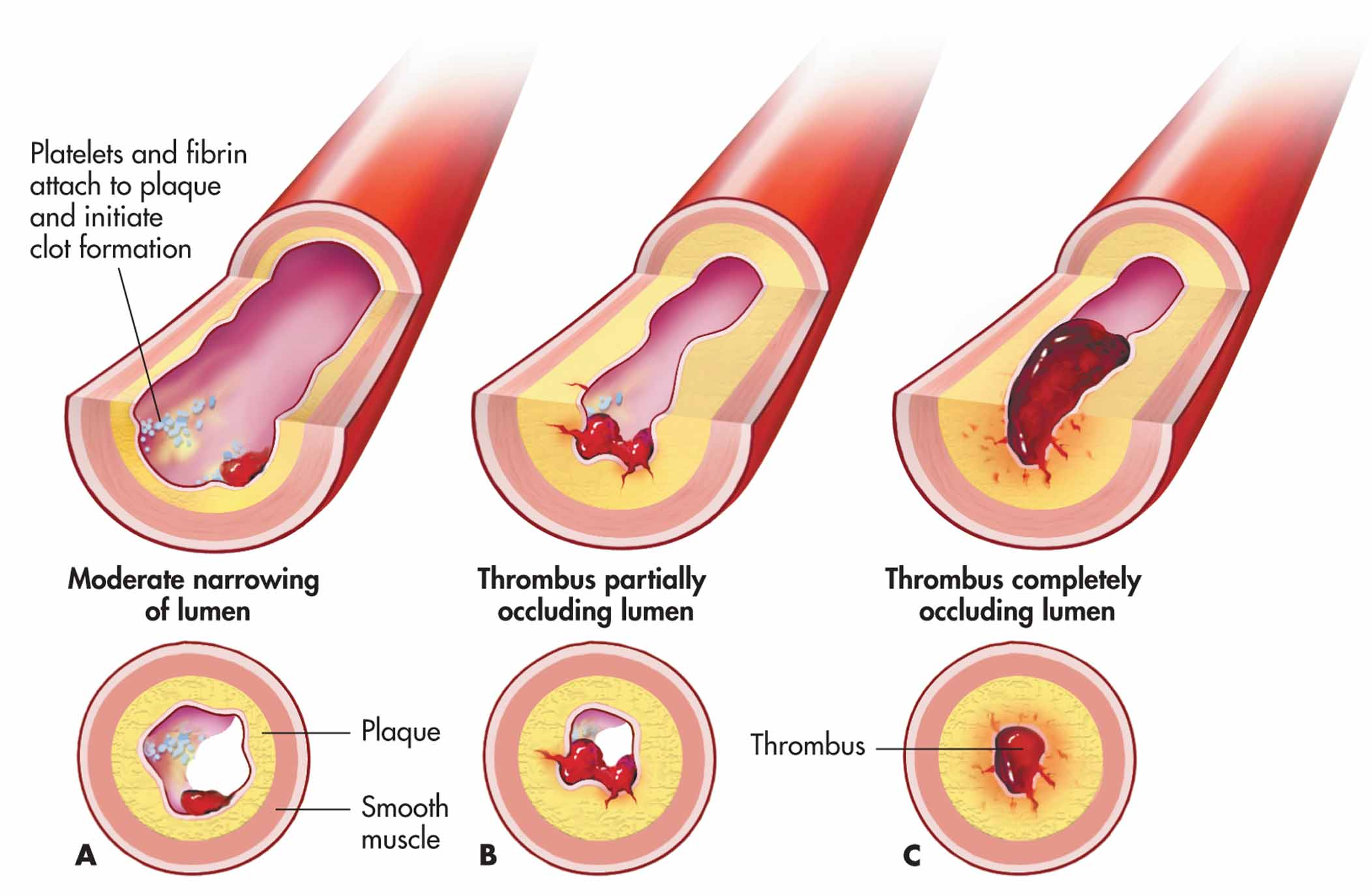Thrombus definition what is for Mural thrombosis