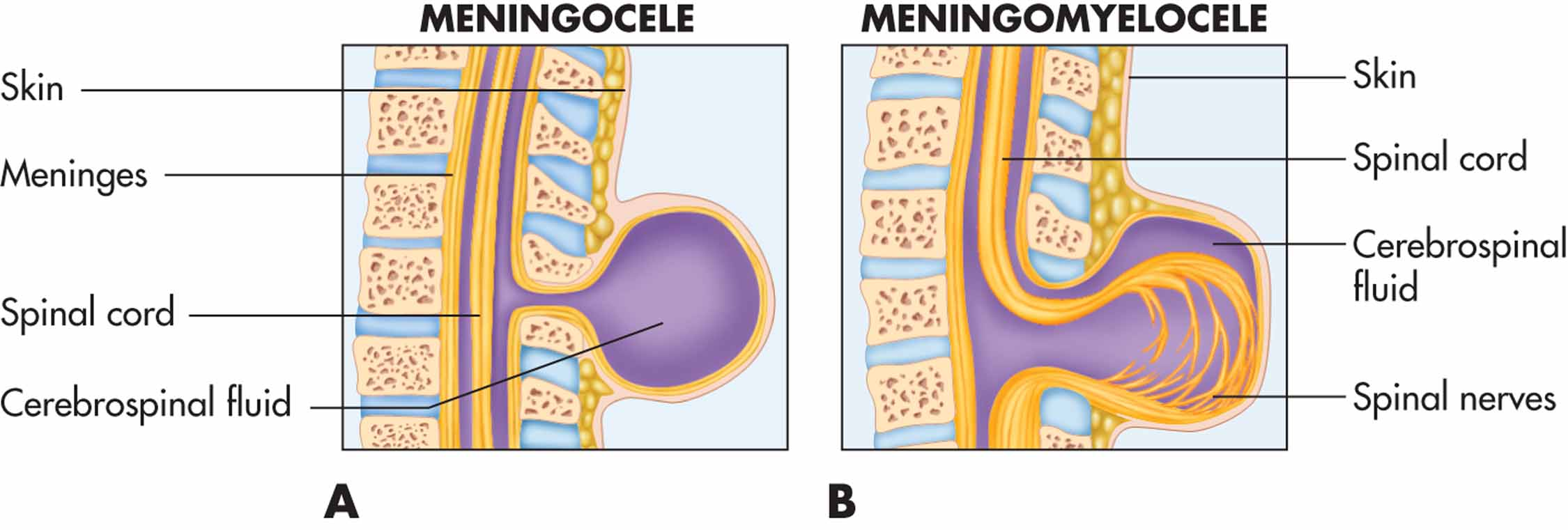 congenital abnormalities of the spine. a. meningocele. b, Skeleton