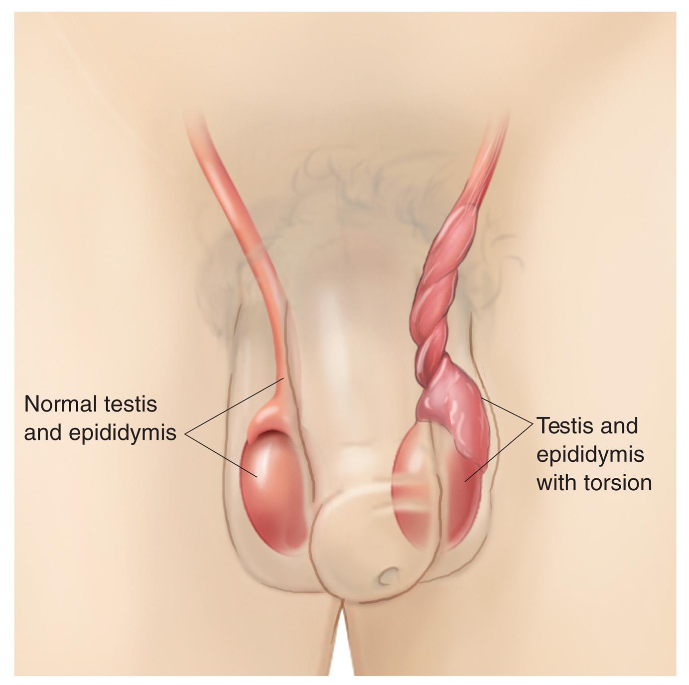 Testicular Torsion - more info