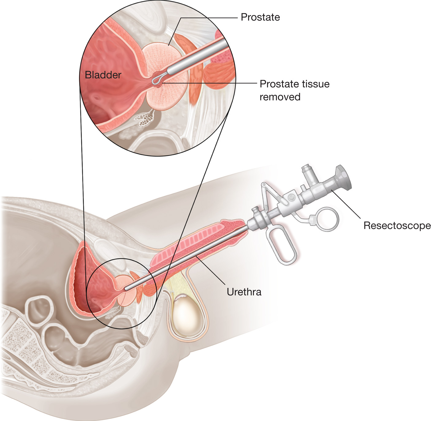 Removed prostate — photo 14