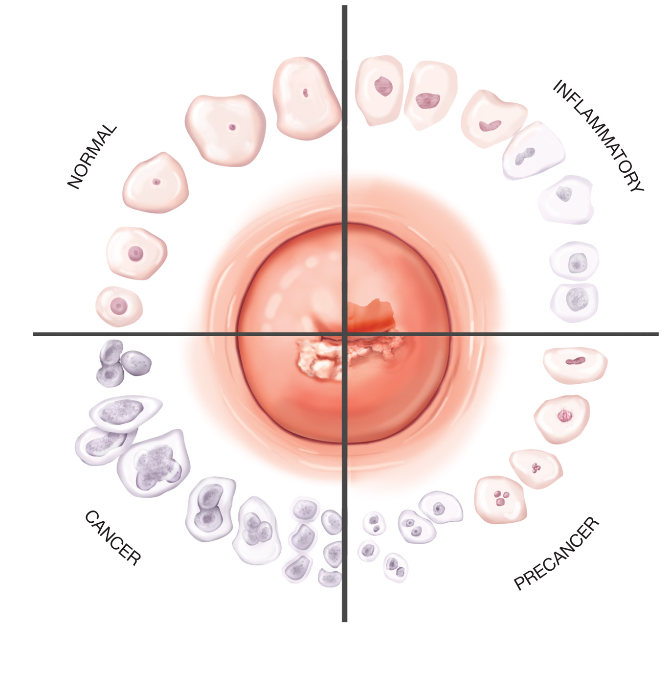 pap smear cells of the cervix shown in the center change in  : pap smear diagram - findchart.co