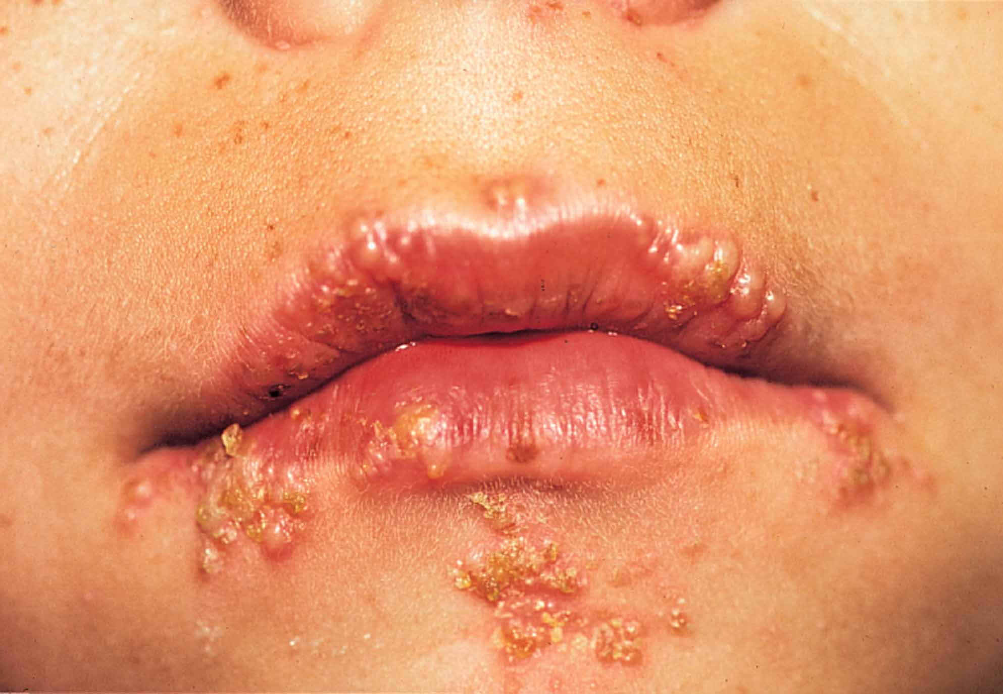 Pictures of oral herpes 10