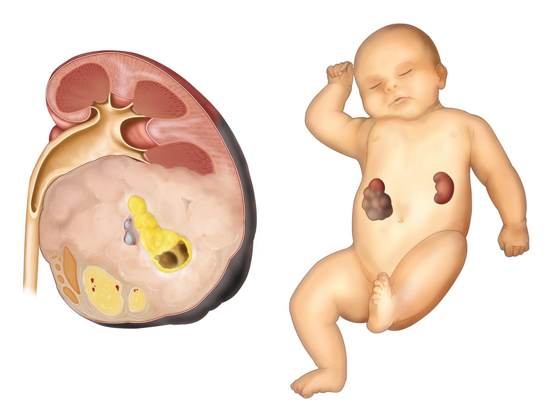 Nephroblastoma. A sectioned kidney reveals ...