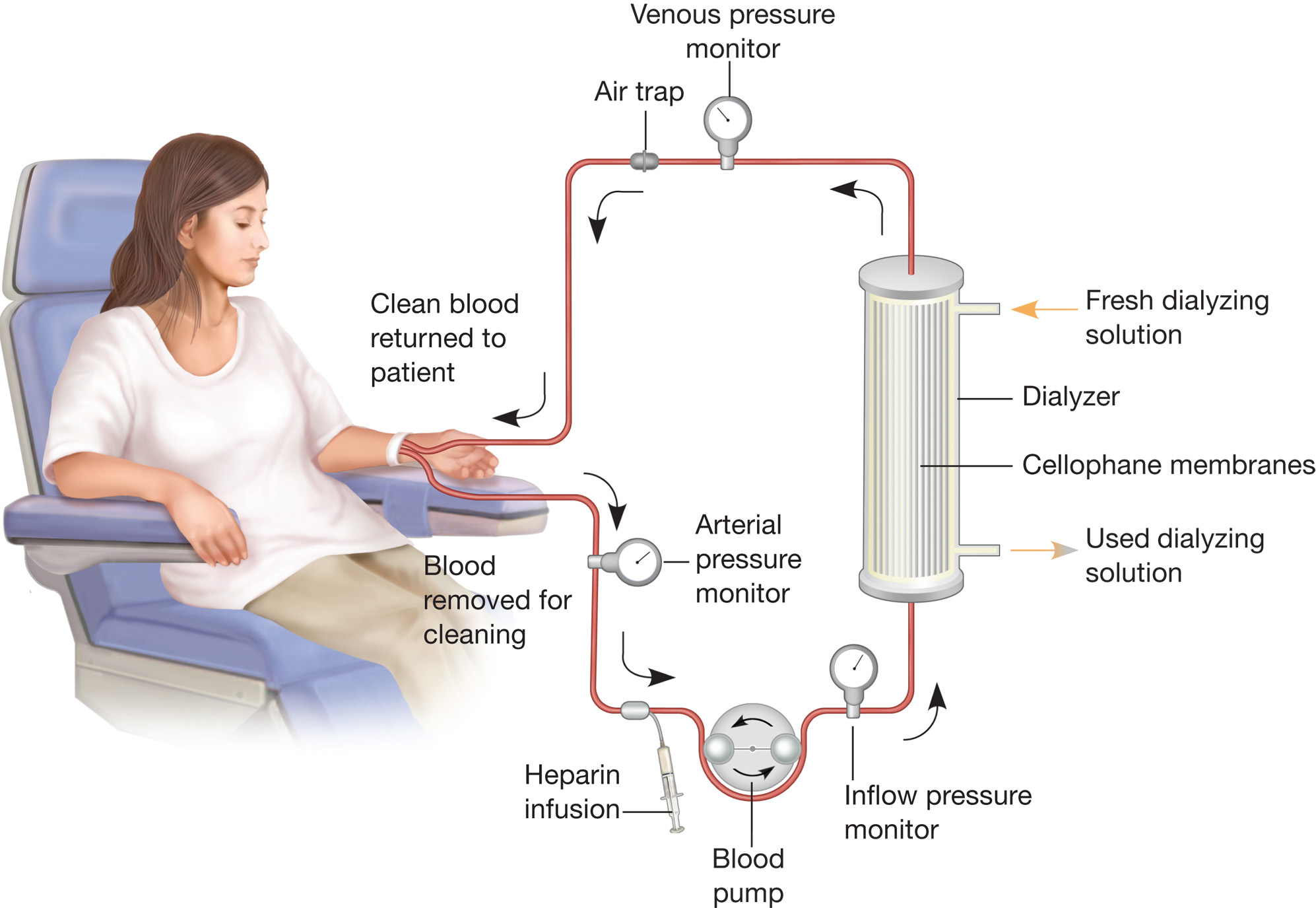 purpose and role of renal dialysis biology essay Despite considerable advances in assessment of dialysis adequacy with   weight resulting from normal renal function, vascular permeability,  in summary,  plasma anp is sensitive for detecting overhydrated patients, but not specific   nyboer j: workable volume and flow concepts of bio-segments by.