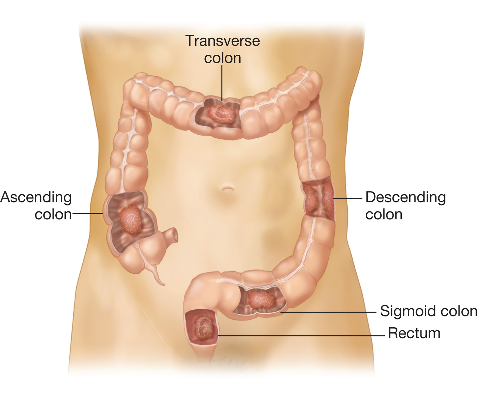 Colorectal Cancer The Most Common Sites Of Tumor Development Are Shown Biology Forums Gallery