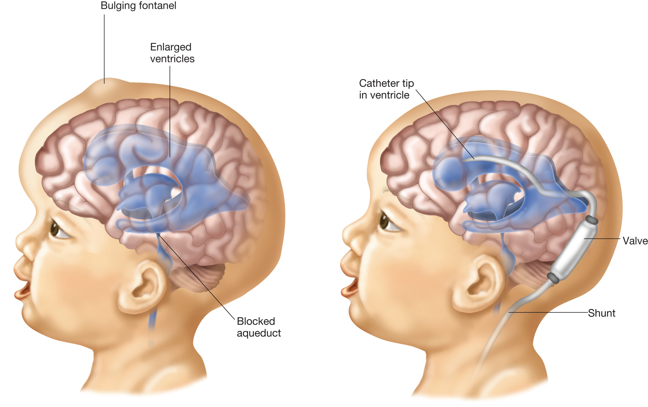 hydrocephalus the figure on the left is a child with the