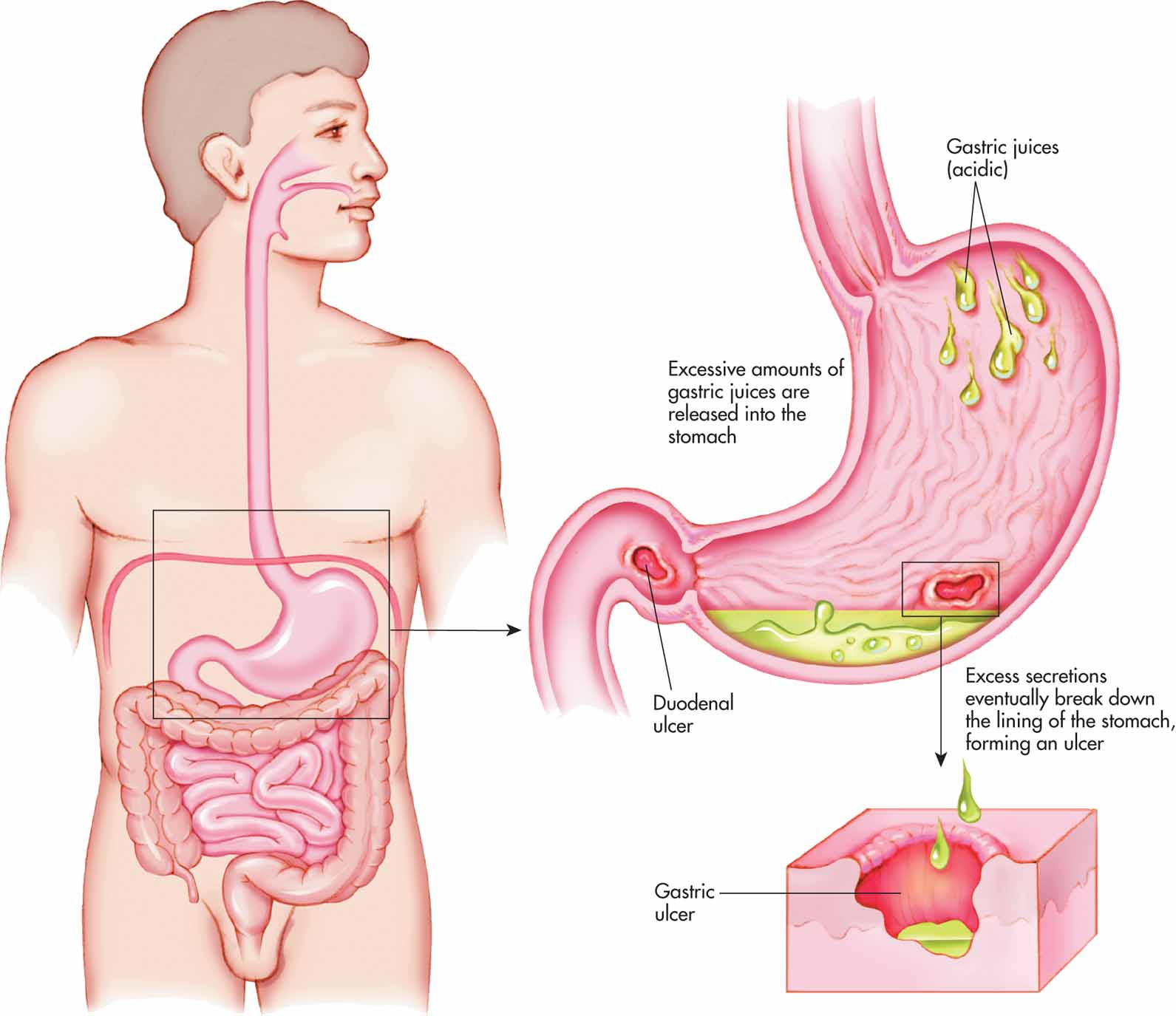 Image result for Stomach ulcer and duodenal ulcer (peptic ulcer)