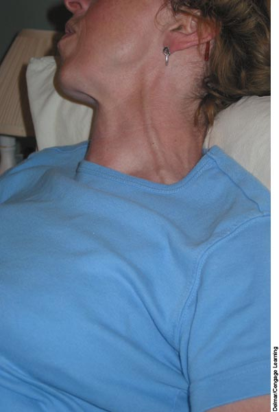 A, Jugular neck vein distention; - Biology Forums Gallery