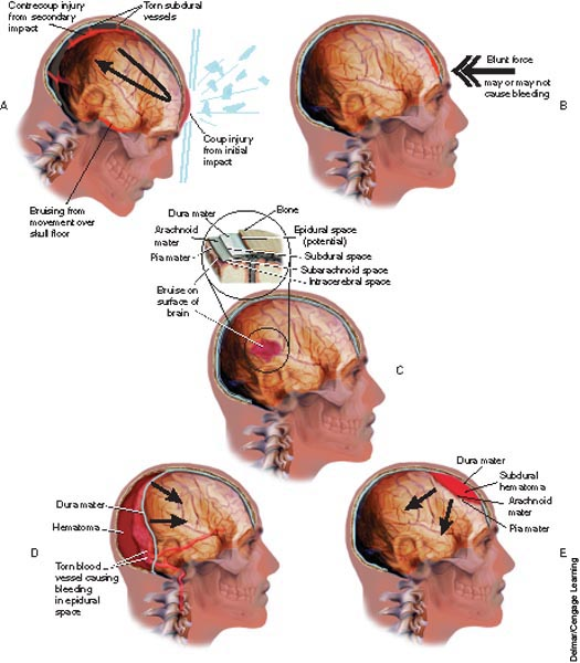 an introduction to a concussion a bruise to the brain Injuries can range from mild concussions to severe permanent brain damage   contusion is a bruise to a specific area of the brain caused by an impact to the   any device placed within the patient has the potential to introduce a microbe.