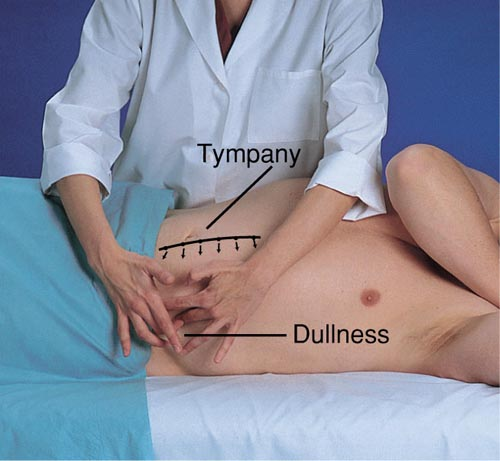 Percussion For Ascites Shifting Dullness Patient On Left