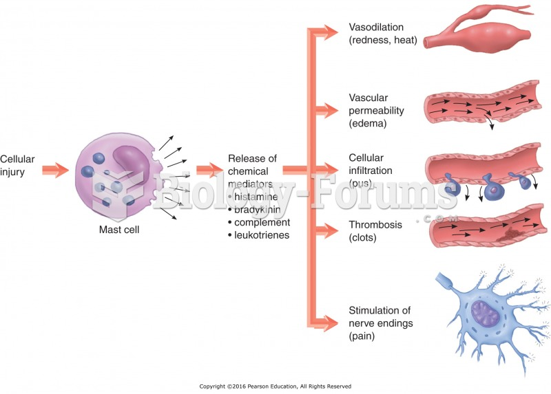 Steps in acute inflammation.