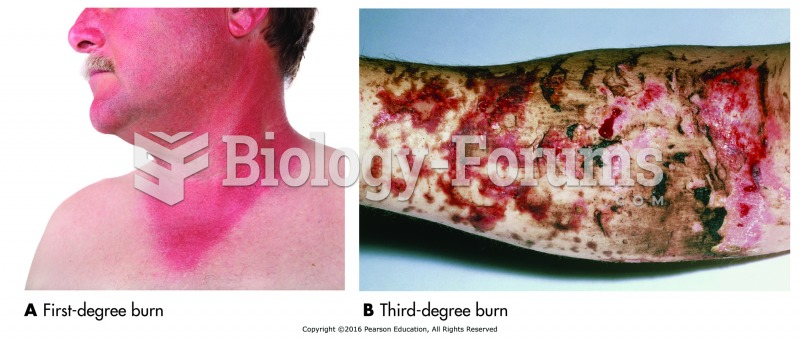 Assessing the degree of the burn. Bottom photos show (A) first-degree burn (sunburn) and (B) ...