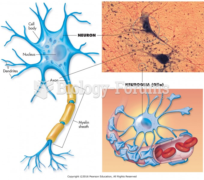 The two main types of nerve cells.