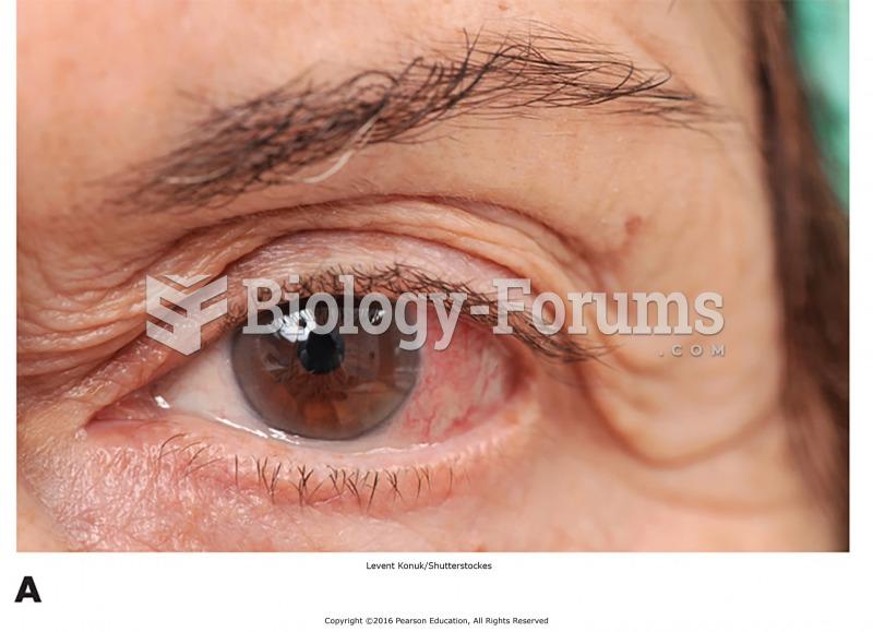 "Some common eye disorders. (A) Conjunctivitis (""pinkeye"")."