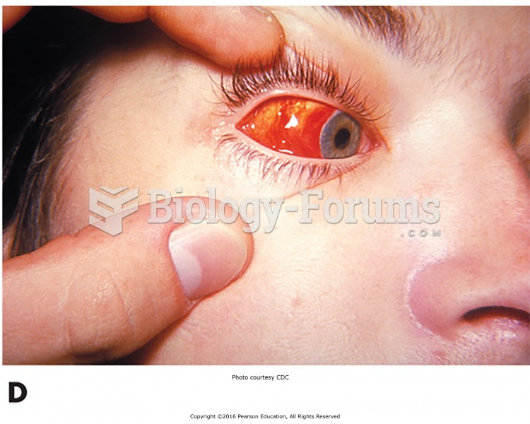 Some common eye disorders. (D) Conjunctival hemorrhage of the right eye of this patient with ...