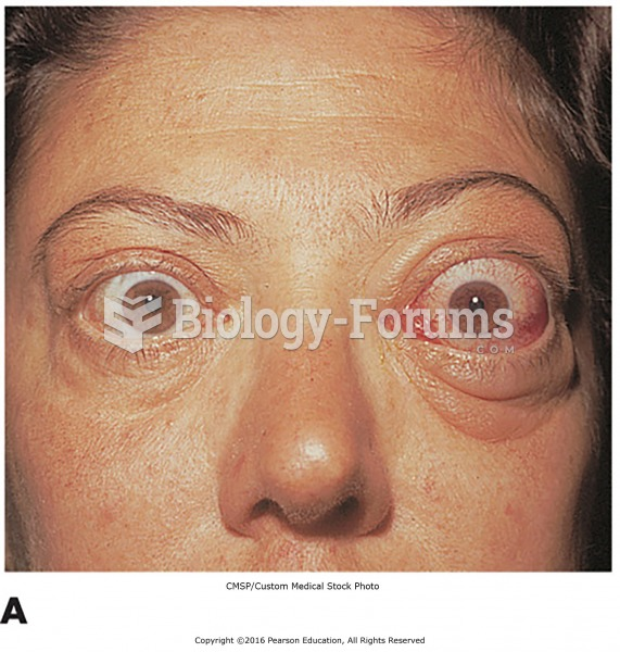 Examples of endocrine disorders. (A) A patient with exophthalmos, a symptom of hyperthyroidism ...
