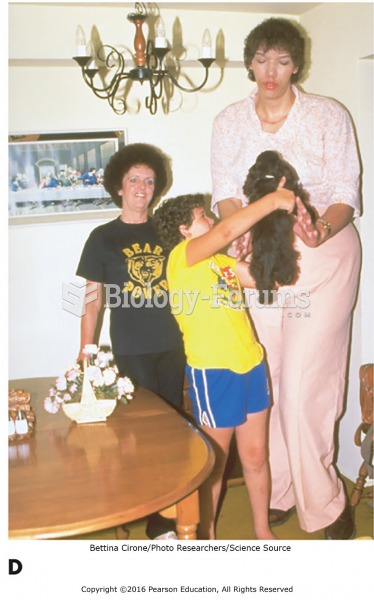 Examples of endocrine disorders. (D) A patient with gigantism.