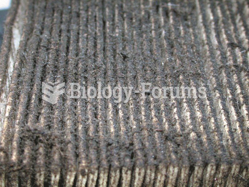 Dust and dirt in the air are trapped  in the air filter so they do not enter the engine.