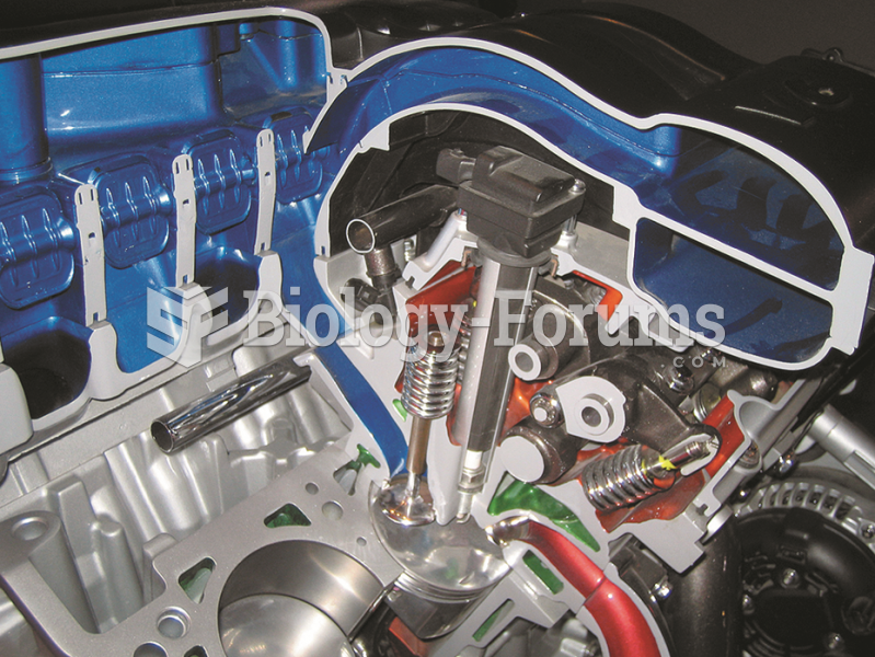 The air flowing into the engine can  be directed through long or short runners for best performance ...