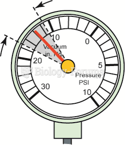 A gauge reading with the needle fluctuating 3 to 9 inches Hg below normal often  indicates a vacuum ...
