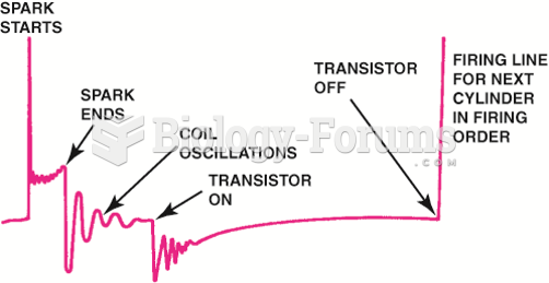 Drawing shows what is occurring electrically at each part of the scope pattern.