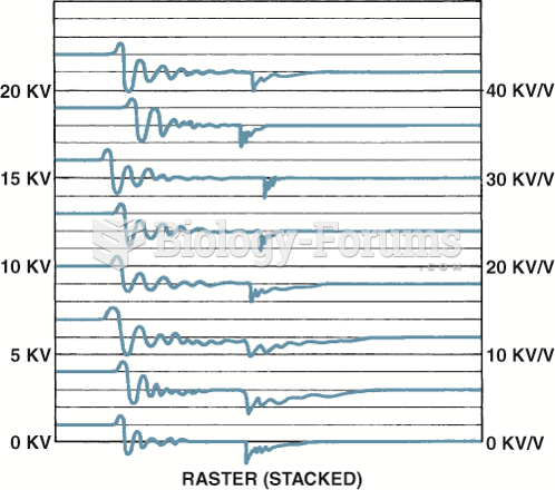 Raster is the best scope position to view the spark lines of all the cylinders to check for ...