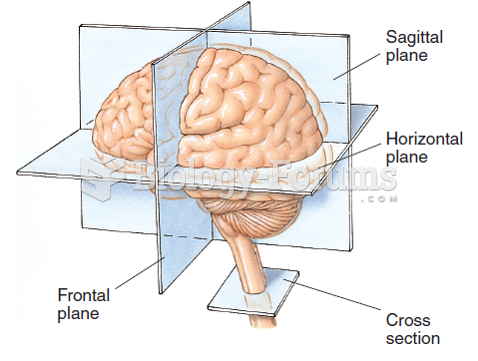 Horizontal, frontal (coronal), and sagittal planes in the human brain and a cross section of the ...