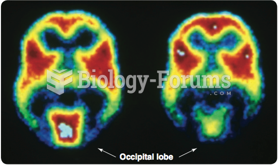 A series of two PET scans. A scan was done when the volunteer's eyes were either open (left) or ...
