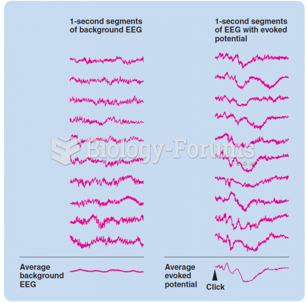 The averaging of an auditory evoked potential. Averaging increases the signal-to-noise ratio.
