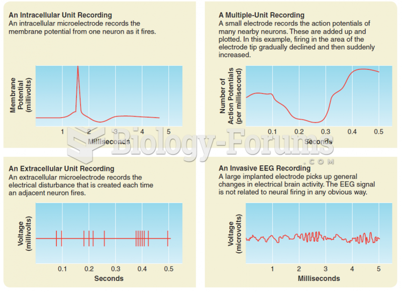 Four methods of recording electrical activity of the nervous system.