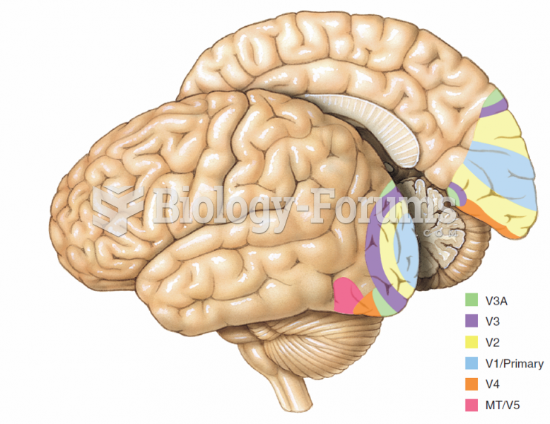 Some of the visual areas that have been identified in the human brain.