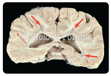 Areas of sclerosis (see arrows) in the white matter of a patient with MS.