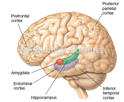 The typical distribution of neurofibrillary tangles and amyloid plaques in the brains of patients ...