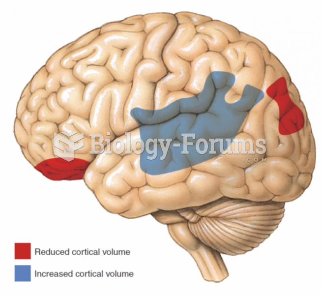 Two areas of reduced cortical volume and one area of increased cortical volume observed in people ...