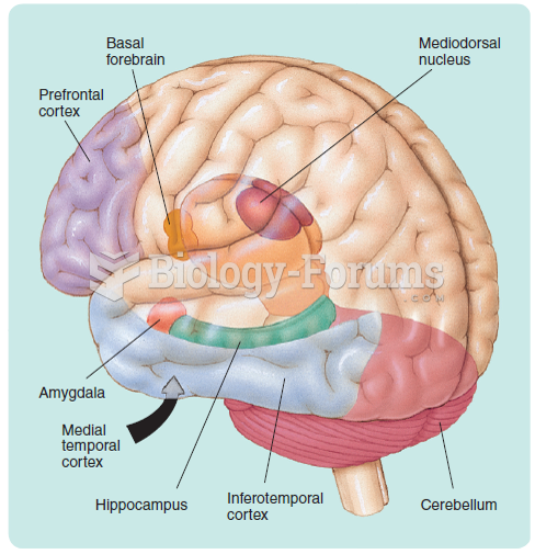 The structures of the brain that have been shown to play a role in memory. Because it would have ...