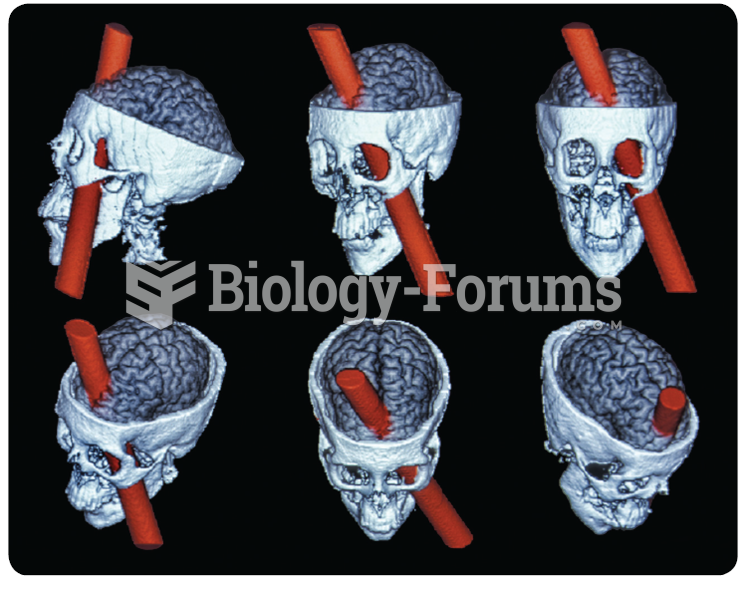 A reconstruction of the brain injury of Phineas Gage. The damage focused on the medial prefrontal ...