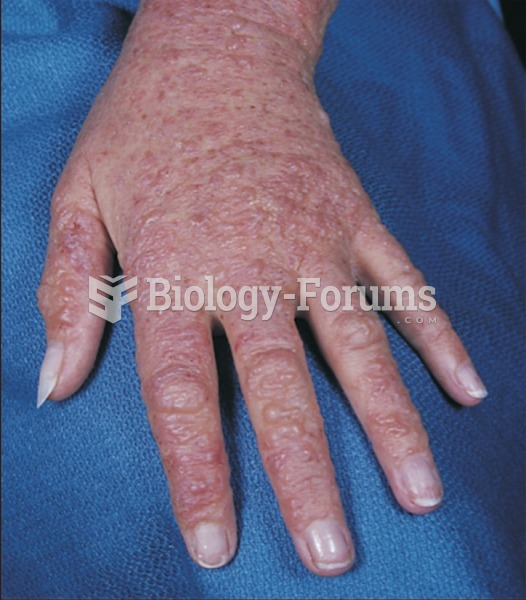 A severe case of delayed contact dermatitis (Type IV hypersensitivity) from wearing latex gloves.