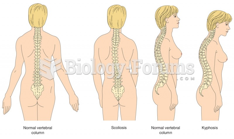 The two most common deformities of the spinal column are scoliosis and kyphosis.