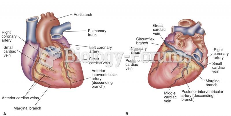 Coronary arteries and major vessels (A) anterior (B) posterior.