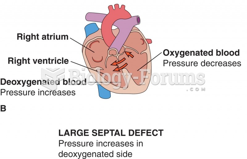 Effects of septal defects: (A) normal shunt; no cyanosis; (B) increased pressure in right ventricle; ...