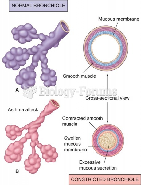 A) Normal bronchiole and (B) bronchiole constricted in asthma attack.