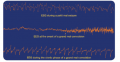 Cortical EEG recorded during epileptic attacks. Notice that each trace is characterized by epileptic ...