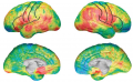 Structural MRIs reveal thinning of sensorimotor cortex in children with Tourette syndrome. Red and ...