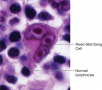 Reed-Sternberg cells are large, abnormal lymphocytes that may contain more than one nucleus. These ...
