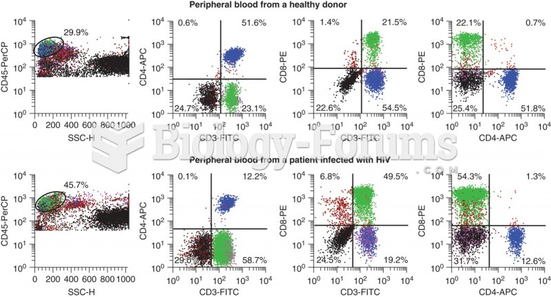 Flow scattergrams showing results on the top set from a healthy donor and on the bottom set from a ...