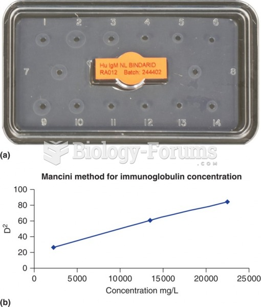 (a) A photograph of a radial immunodiffusion reaction for measurement of patient IgA concentrations. ...